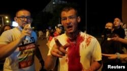 Un hombre herido en Minsk, Bielorrusia tras protestar contra reelección de Lukashenko. REUTERS/Vasily Fedosenko