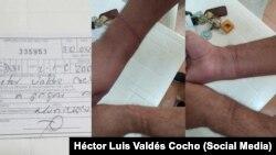 Marcas que le dejaron las esposas al periodista independiente Héctor Luis Valdés Cocho