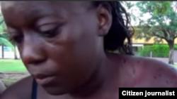 Niegan atención médica a Dama de Blanco Sonia Garro, agredida por simpatizantes del Gobierno.
