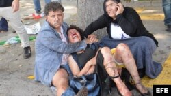 Una mujer herida en los atentados ocurridos en Ankara es atendida (Turquía).