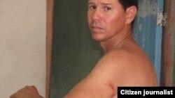 Reporta Cuba. Yoel Bencomo muestra golpes recibidos cuando tomaba fotos de una protesta.