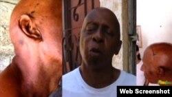 Guillermo Fariñas muestras los maltratos físicos durante el arresto domingo 20