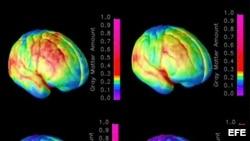 Imágenes del cerebro humano .