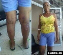 La presa política Xiomara Cruz Miranda, en fotos enviadas desde la cárcel. (Twitter).