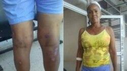 Dama de Blanco reportada grave por médicos de terapia intermedia