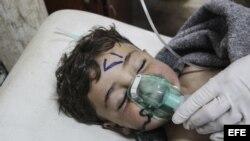 Un niño recibe tratamiento médico tras un supuesto ataque químico contra la localidad de Jan Shijún.