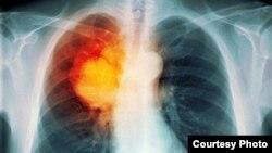 Radiografía de cáncer de pulmón. Esta localización es la de mayor incidencia en Cuba, con alto índice de fumadores.