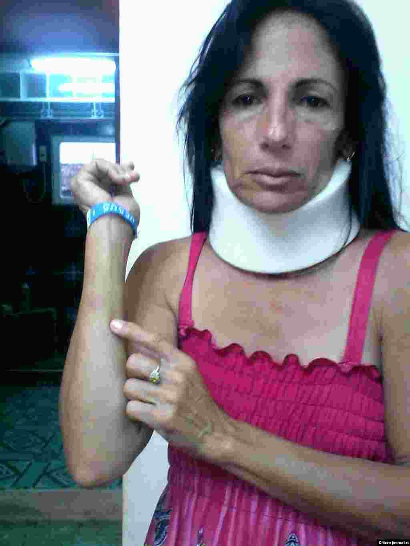 Leticia Ramos Herrería, luego de los golpes propinados por la policía.