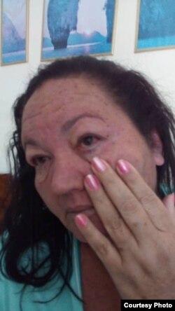 La activista Leydis Tabares, aquejada de dengue. (Foto: Cortesía)