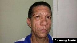 Ovidio Martín Castellanos, en una foto tomada a raíz de la golpiza que sufrió a manos de la policía política cubana en abril de 2016 (Archivo).