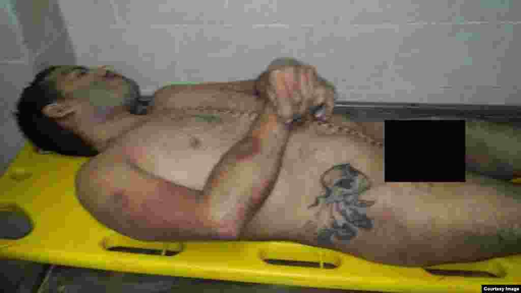 Hombre muere tras brutal golpiza en unidad policial de La Habana