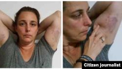 Reporta Cuba. Tania Bruguera, víctima de la represión castrista, 7 de junio. Foto: Ailer González.
