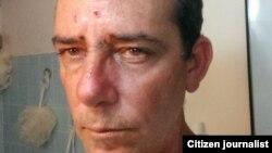 Reporta Cuba. Lázaro Yuri Valle, reportero ciudadano maltratado por oficiales de la Seguridad del Estado.
