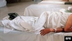 Foto de archivo de un enfermo de cólera.