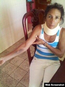 Leticia Ramos Dama de Blanco muestras golpes propinados por policias al ser detenida a la salida de la iglesia en Cárdenas Matanzas