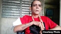 Cristian Pérez Carmenate en una imagen que muestra su deterioro físico.