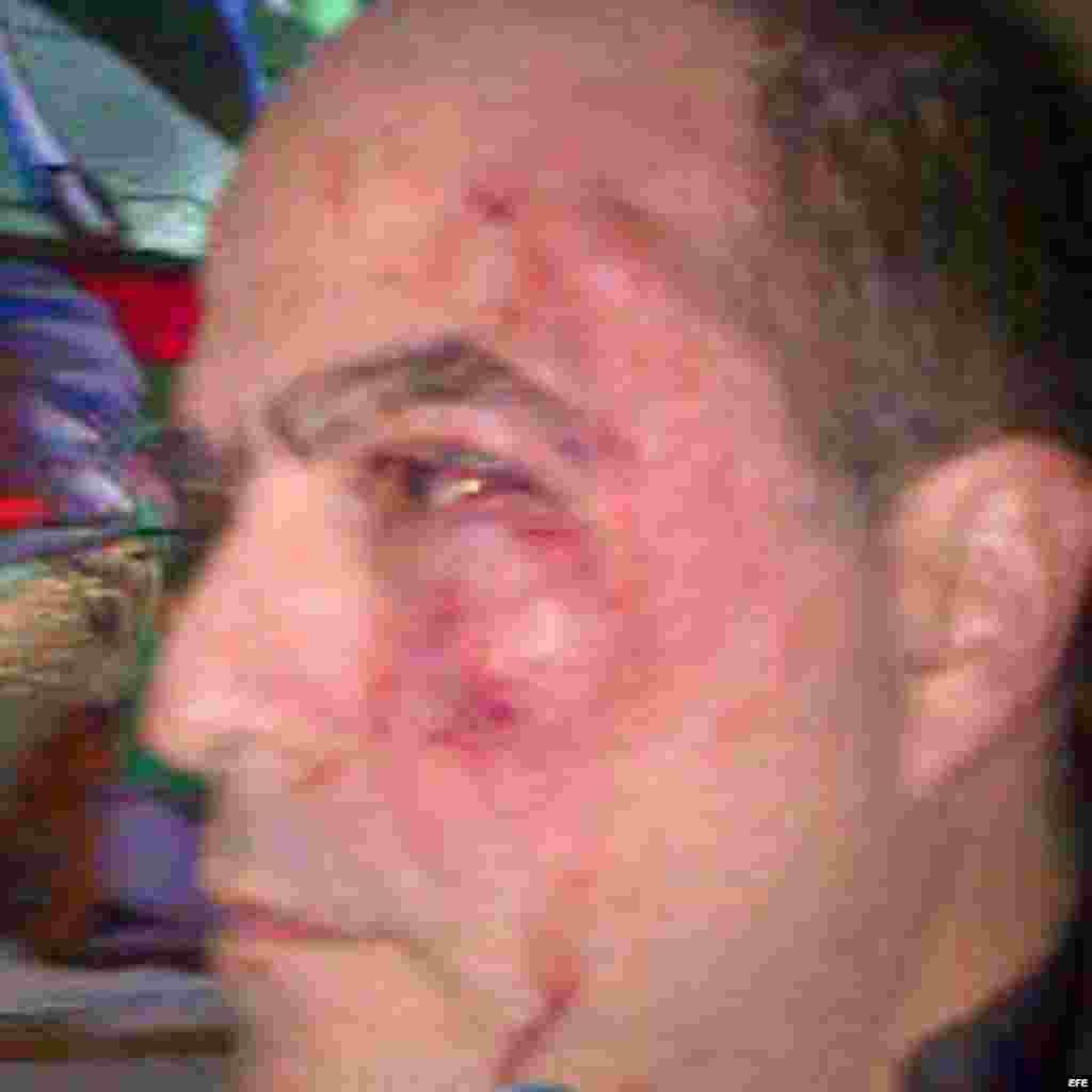 """Fotografía cedida por el equipo de prensa del partido político venezolano """"Primero Justicia"""" donde se observa al diputado opositor Julio Borges, ensangrentado, golpeado en un ojo y con el pómulo izquierdo visiblemente hinchado hoy, martes 30 de abril de"""