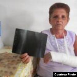 Dama de Blanco Sonia Alvarez agredida en julio 21 Colón twitpic de @SayliNavarro