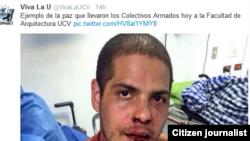 Estudiantes atacados en la UCV