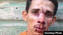 Ataques contra viviendas de opositores pacíficos en Cuba