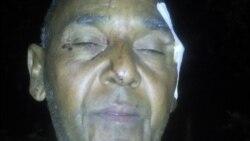 Niegan certificado de lesiones a opositor golpeado por la policía
