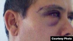 El periodista independiente Alberto Corzo fue agredido en Matanzas.