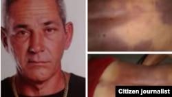 Alejandro Pupo Echemendía. A la derecha, fotos tomadas por sus familiares con las huellas de una golpiza policial que recibió en Placetas y acabó con su vida.