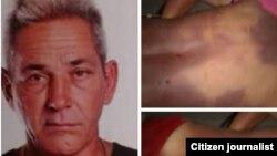 Alejandro Pupo Echemendía y fotos tomadas por sus familiares con las huellas de una golpiza policial que recibió en Placetas y acabó con su vida.