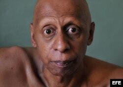 El disidente cubano Guillermo Fariñas, premio Sájarov 2010 a la libertad de conciencia