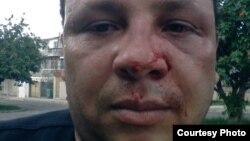 El periodista independiente Roberto de Jesús es golpeado en La Habana