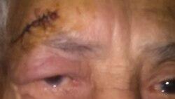 Maltratos físicos en hogar de ancianos en Cuba