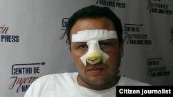 Human Rights First condena maltratos a periodista independiente cubano