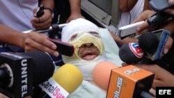 Fotografía de este 29 de octubre muestra al periodista boliviano Fernando Vidal, haciendo declaraciones a los medios en Yacuiba (Bolivia) donde fue quemado por desconocidos cuando conducía un programa radial.