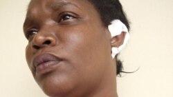 Municipios de Oposición en Artemisa ofrece consultoría popular; mujer policía muerde la oreja de una Dama de Blanco