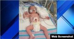 Valeria Gattorno nació prematura. No podrá salir de EEUU hasta que los médicos no lo autoricen.