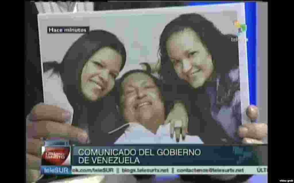 El presidente venezolano, Hugo Chávez, sigue con problemas respiratorios inherentes a la operación por un cáncer que le fue practicada hace más de dos meses en Cuba.