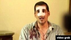 Un policía político le fracturó la nariz de un puñetazo a Antonio Rodiles mientras estaba esposado.