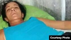 Sonia de la Caridad González Mejías, activista de (UNPACU), luego de ser liberada el 30 de Julio de 2017. Cortesía Serafín Morán.