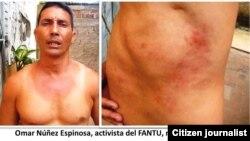 Juan Carlos Ruiz fue golpeado en Santa Clara