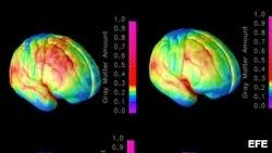 Combo de imágenes que muestran el progreso de maduración del cerebro.