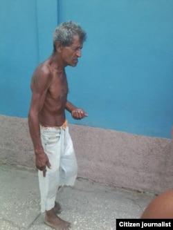 Reporta Cuba mendigos en Contramaestre. Foto: Yoandris Veranes.