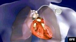 Las mutaciones DCM nocivas debilitan el corazón.
