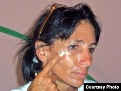 Leticia Ramos Herrería muestra golpes recibidos ayer 3 de noviembre