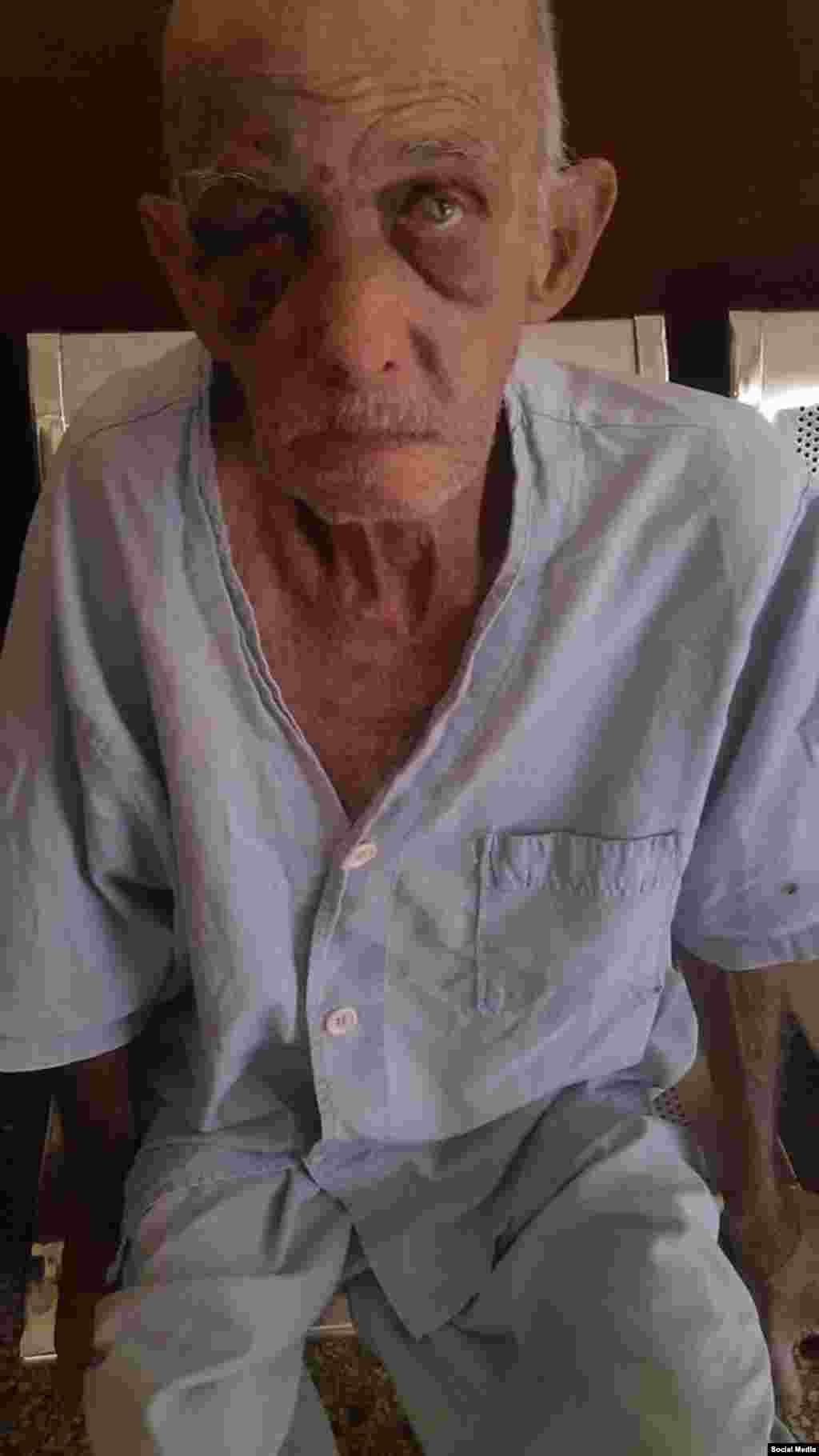 """Paciente del Hogar de Ancianos """"José Manuel Lazo de la Vega"""", del municipio la Lisa, La Habana. Foto Facebook Jose Antonio Pompa López."""
