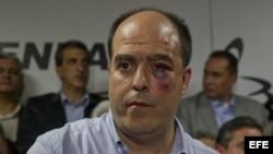 CAR102. CARACAS (VENEZUELA), 29/04/2013.- El diputado opositor Julio Borges participa en una rueda de prensa hoy, 30 de abril de 2013, en la sede de la Asamblea Nacional, en Caracas (Venezuela). Varios diputados de la oposición fueron golpeados este marte
