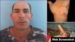 El periodista independiente Osvaldo Landín Baños fue atropellado por la policía durante su arresto. (Foto: ICLEP)