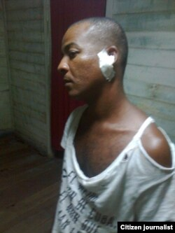 Reporte ciudadano desde Santiago de Cuba donde un activista fue golpeado durante el arresto policial.
