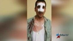 Repercusión mundial por la brutal golpiza al opositor Antonio Rodiles